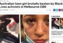 Mik, la adolescente australiana brutalmente agredida por activistas del Black Lives Matter